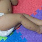 Udeluk uvaccinerede børn fra daginstitutioner